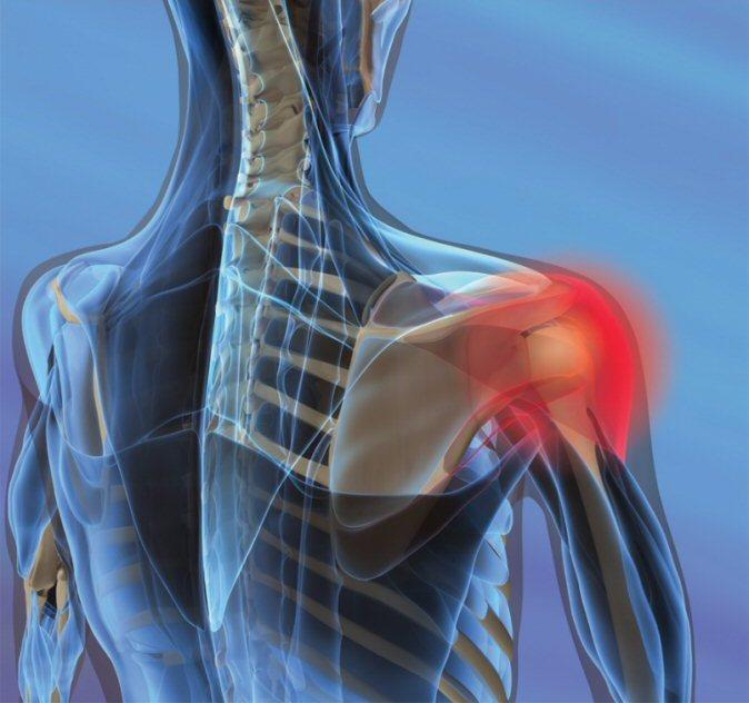 Рентгенова находка при ревматоиден артрит